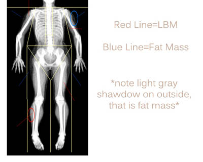 Dexa Scan Picture